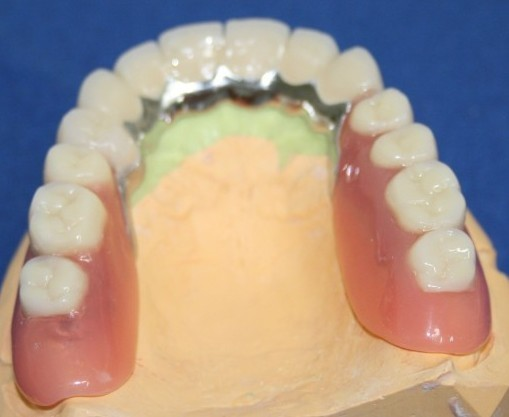 Zahnarztpraxis- Dr-Dehling - Teleskopprothesen